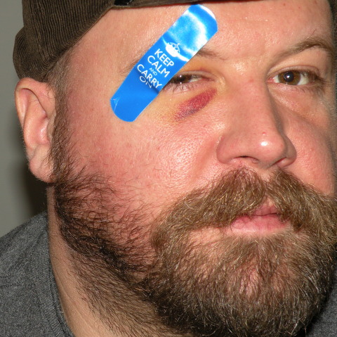 scars, justin, jamie eslinger, thepromisedaily.com, thepromise365.com